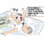 「隠れた大胸筋短縮」:脳卒中(脳梗塞・脳出血)片麻痺のリハビリ