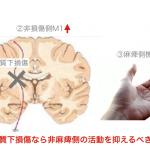 <脳科学トピック>脳卒中で損傷しなかった一次運動野は運動機能に影響を及ぼすのか?〜損傷部位による違いを検証〜