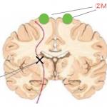 <脳科学トピック>脳卒中後に生じる脳のネットワークの変化の意味とは?