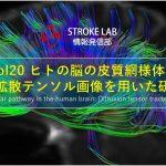 vol.20: 脳卒中/脳梗塞のリハビリ論文サマリー:ヒトの脳の皮質網様体路:拡散テンソル画像を用いた研究