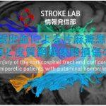 vol.21: 脳卒中/脳梗塞のリハビリ論文サマリー:被殻出血による片麻痺患者の皮質脊髄路と皮質網様体路損傷の特徴