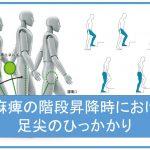 片麻痺の階段昇降時における足尖のひっかかり 脳卒中/脳梗塞のリハビリ論文サマリー
