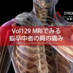 vol.129:MRIでみる脳卒中者の肩の痛み  脳卒中/脳梗塞リハビリ論文サマリー