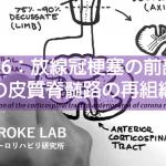 vol.336:放線冠梗塞の前部領域への皮質脊髄路の再組織化   脳卒中/脳梗塞のリハビリ論文サマリー