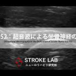 vol.352:超音波による坐骨神経の評価  脳卒中/脳梗塞のリハビリ論文サマリー